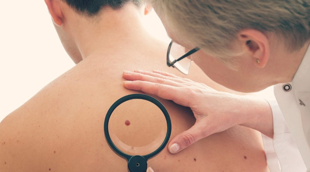 5 Things You Need To Know About Skin Cancer Checks