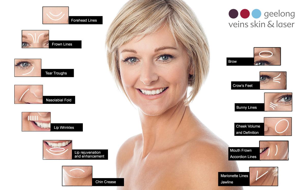 Dermal Fillers Geelong   Geelong Veins, Skin & Laser