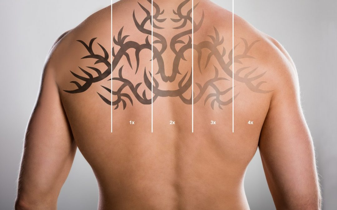Is laser tattoo removal painful?