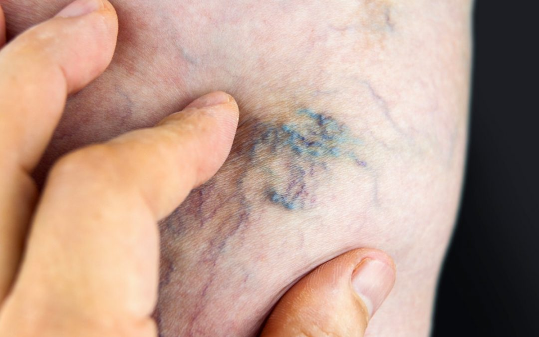 What is the best treatment for Spider Veins?