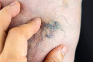 Example of a Spider Vein | Spider Vein Treatment Geelong