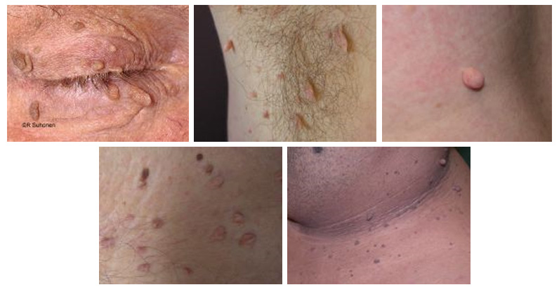 Examples of Skin Tags