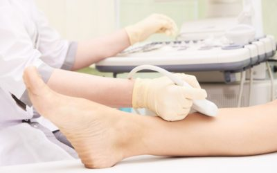 Why Do We Use Ultrasound To Assess Leg Veins?