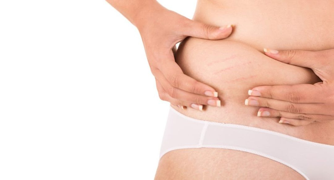 Stretch mark removal treatment options
