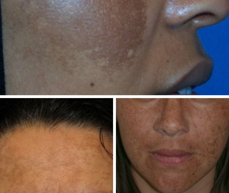 What is MELASMA? How can you treat MELASMA?