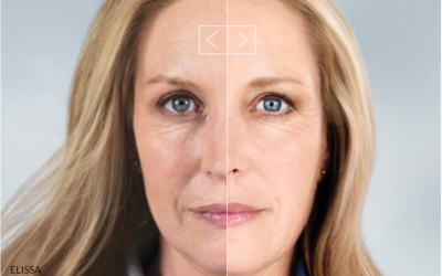 Sculptra Aesthetic, the 'Injectable Facelift'