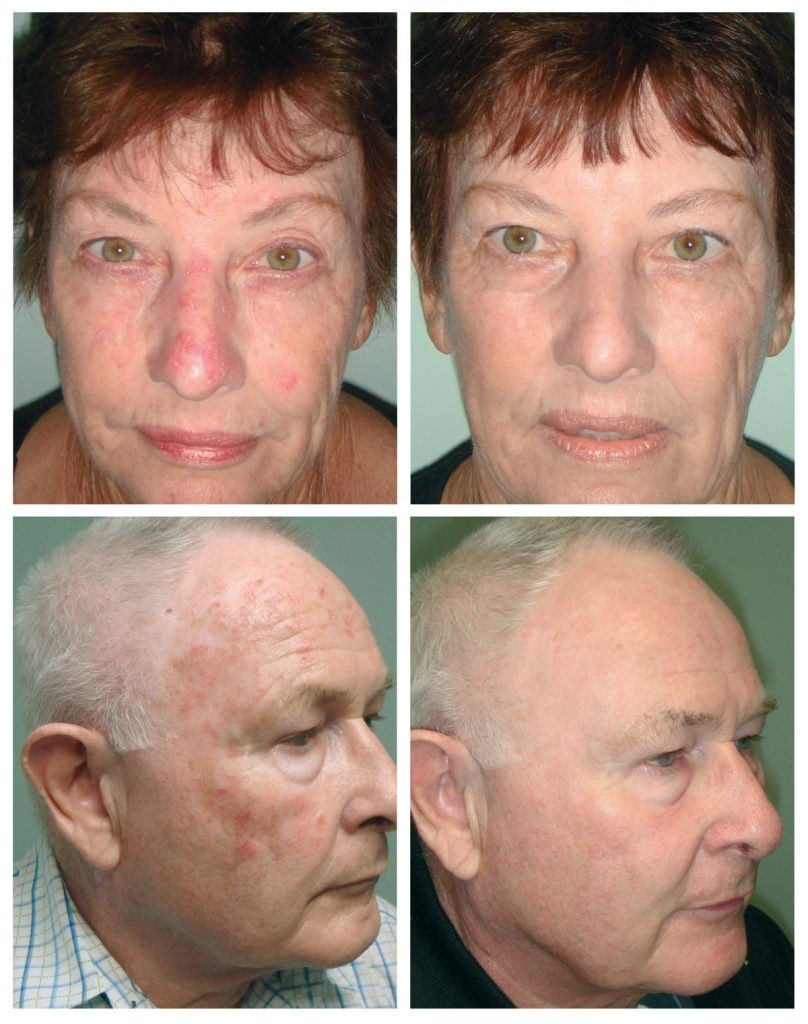 photodynamic therapy results