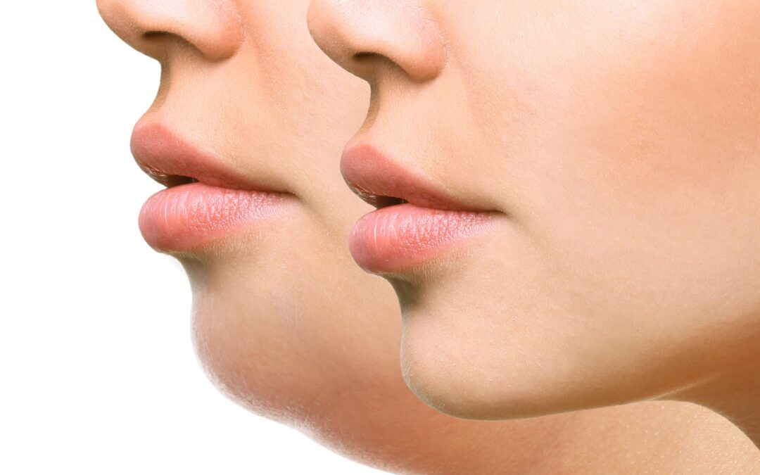 How to Improve the Appearance of Your Neck