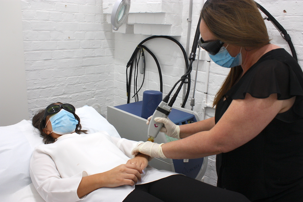 Laser Hair Removal: What You Need to Know Before Having Treatment