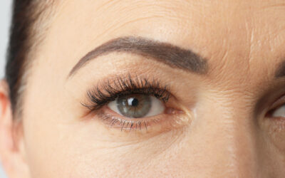 Brow Lift with Anti-wrinkle Injections